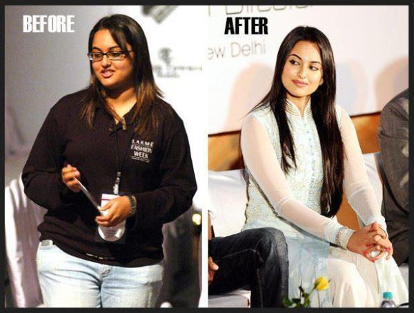 12 Bollywood Actresses From Ugly To Beautiful-7448