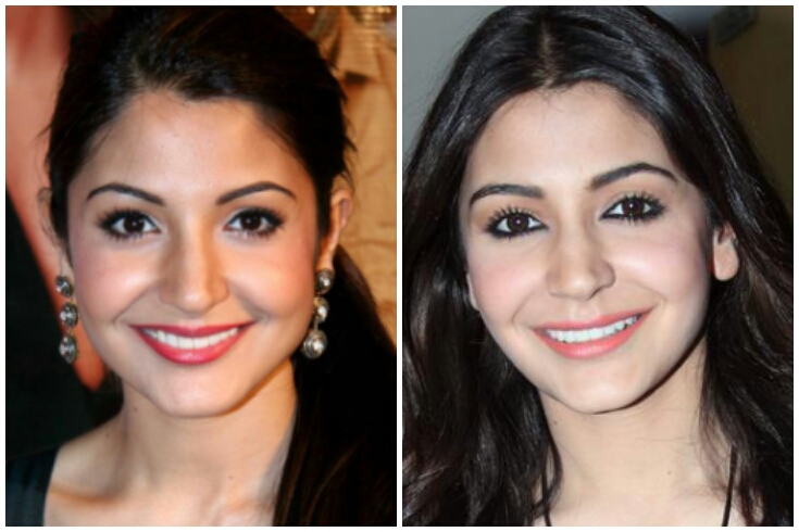15 Bollywood Actresses Became Unidentifiable After Plastic Surgery