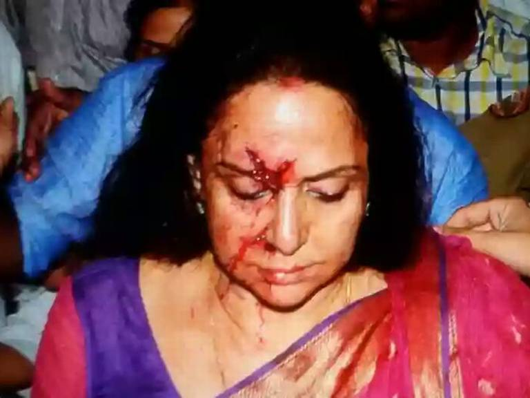 Hema Malini Got Injured In Road Accident At Dausa Rajasthan NH 11