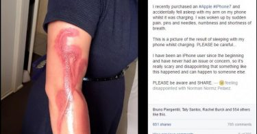 woman-suffered-severe-burns-with-her-iphone-7-768x552